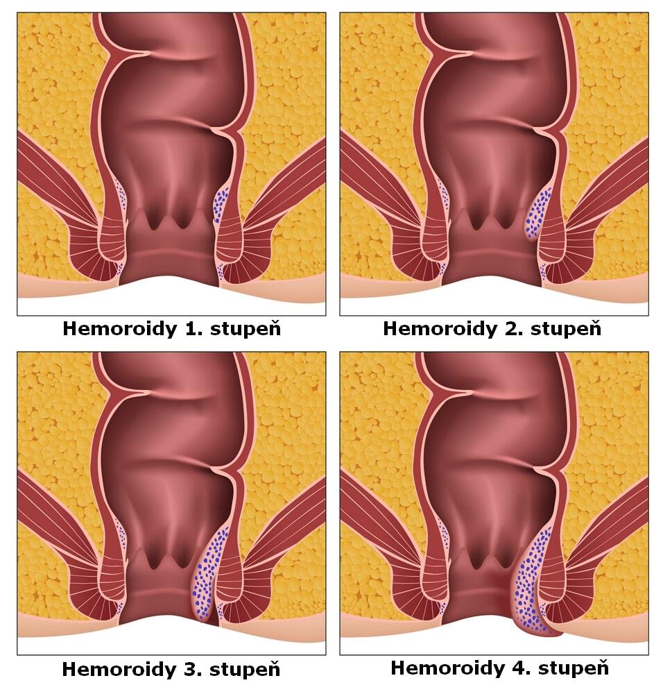 Hemoroidy schéma