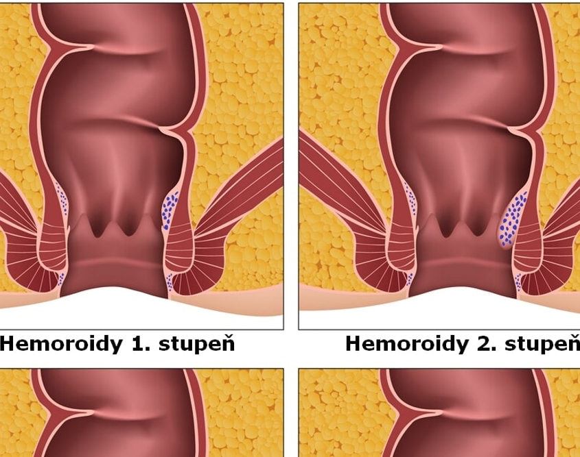 hemeroidy, hemoroidy, obrázek, nákres, schéma